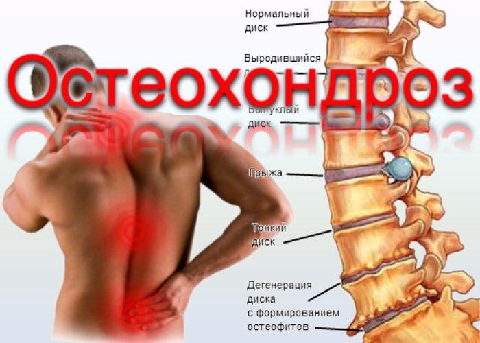 Остеохондроз шейного отдела позвоночника 4 степени симптомы и лечение