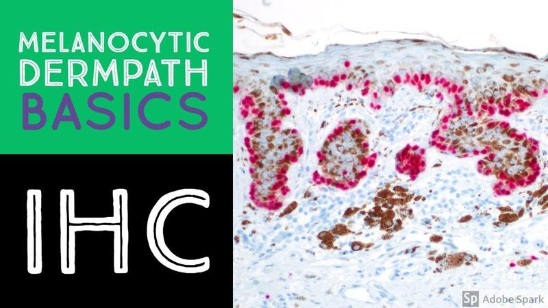 Melanocytic Dermpath Basics Immunohistochemistry