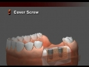 DENTIS Implant Cleanlant Drilling Sequence Sole Abutment