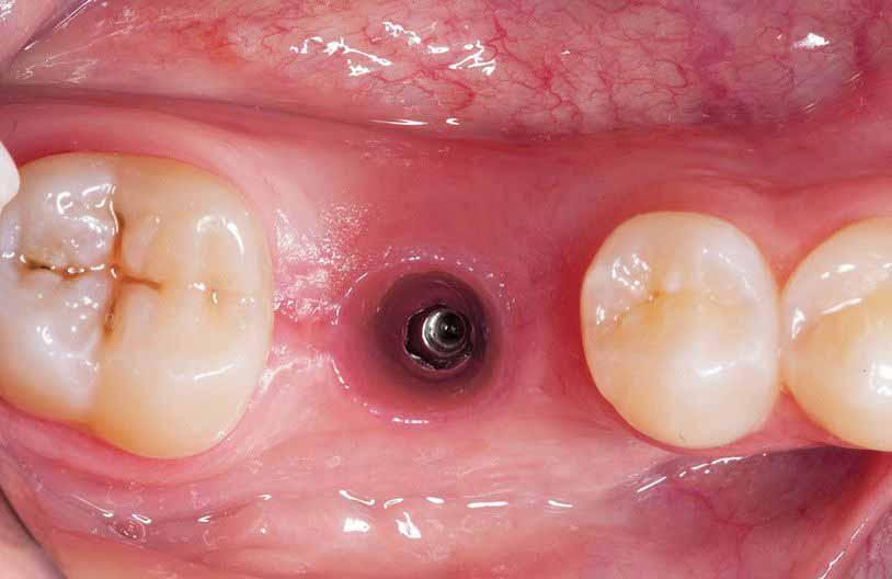 Зачем вам нужен передний зубной имплант