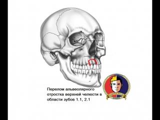 Челюстно-лицевая хирургия - Перелом альвеолярного отростка верхней челюсти в области зубов 1.1, 2.1