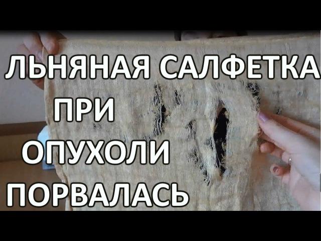 Льняная салфетка Услада при опухоли ПОРВАЛАСЬ