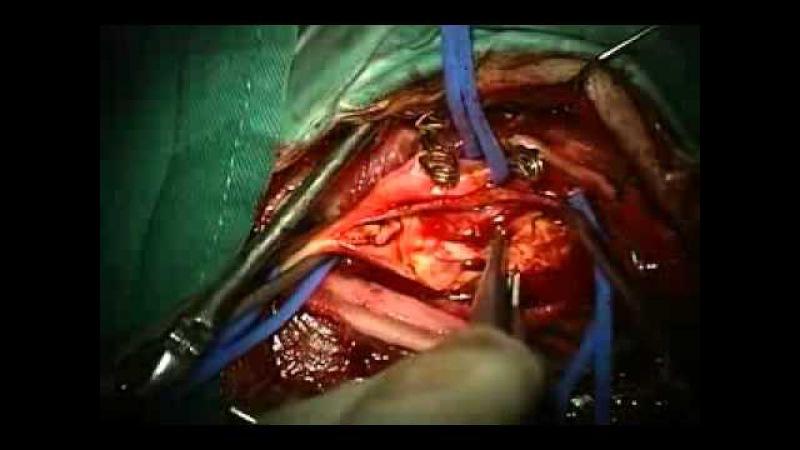 Операция - каротидная эндартерэктомия