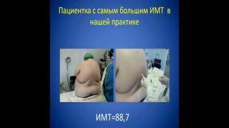 Эпштейн С Л Периоперационная эпидуральная анестезияанальгез
