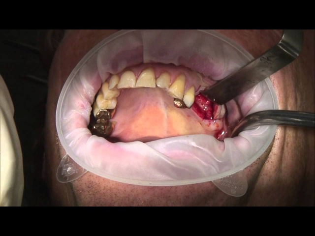 INTRALIFT Sinuslift Live Surgery and simultaneous implant insertion real time with German comments