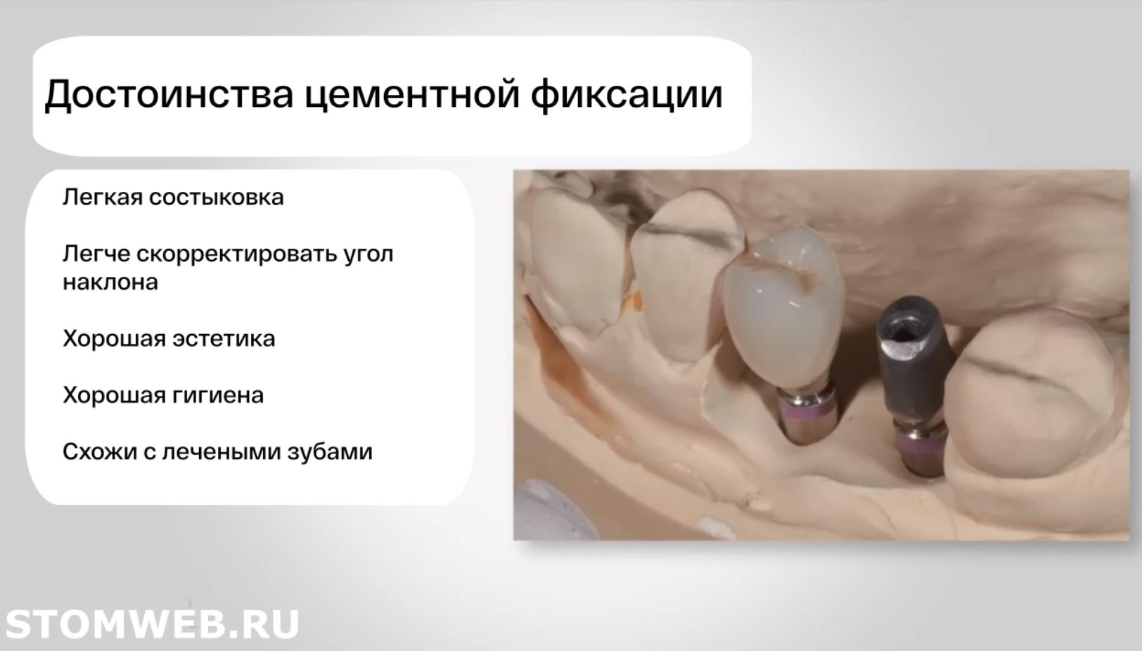 Типы фиксации реставраций на имплантатах