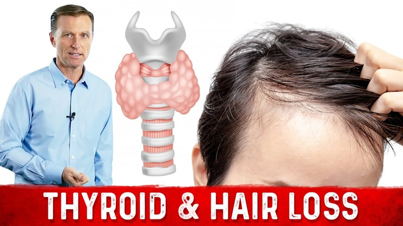 The Ketogenic Diet, Your Thyroid and Hair Loss