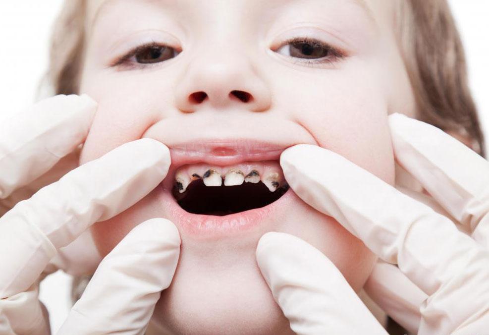 Разрушение зуба может вызвать воспаление зубного нерва.