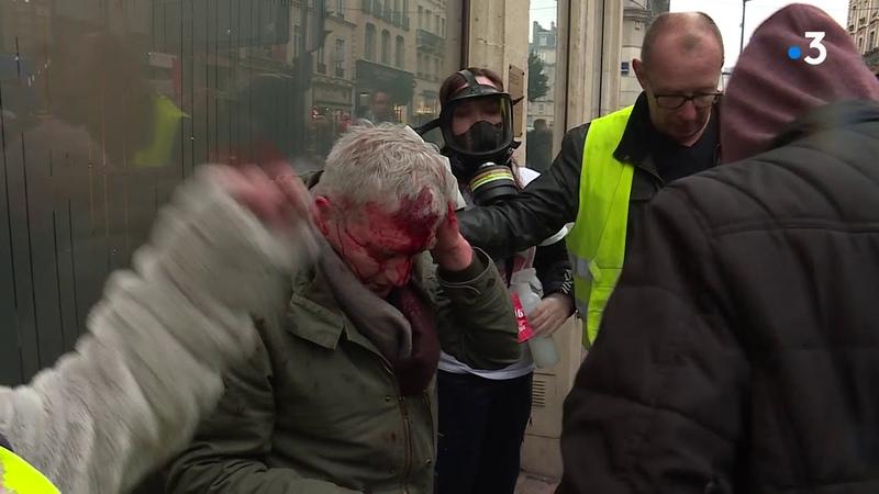 Grève du 9 janvier un homme blessé à Rouen