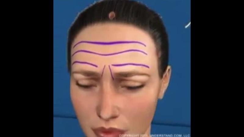 Обзор эндоскопический лифтинг верхней зоны лица Эпиона Медикус