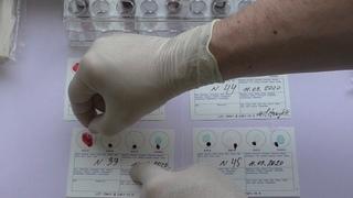 Определение группы крови по системе ABO и антигена D на Элдонкард.