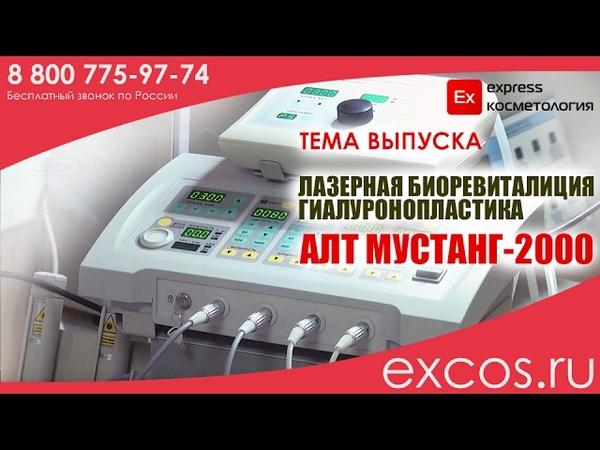 Лазерная гиалуронопластика Мустанг 2000 EXCOS